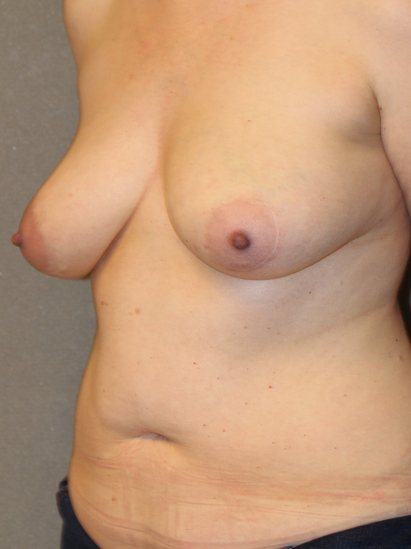 Color photo of woman chest area: Breast Reconstruction Diep Flap SIDE VIEW