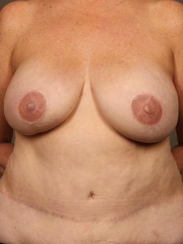 Color photo of woman chest area: Breast Reconstruction Diep Flap Case 3