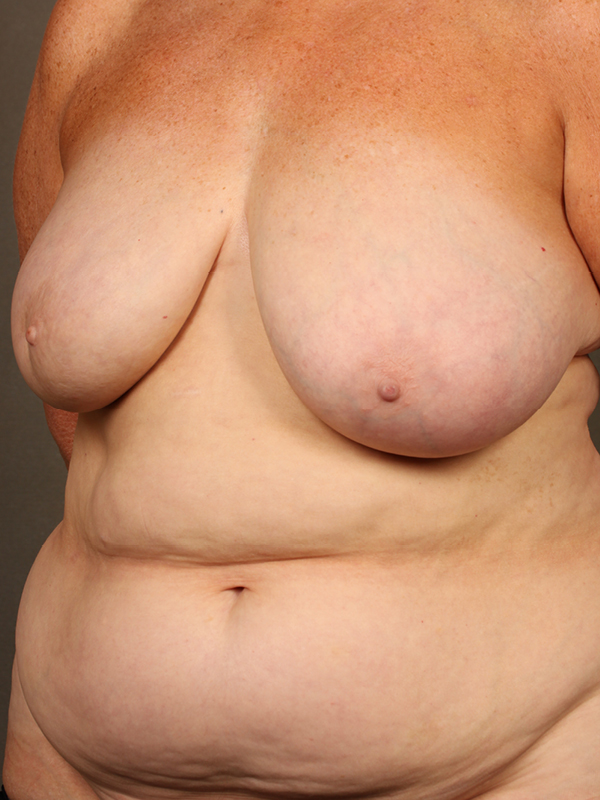 Color photo of woman chest area: Breast Reconstruction Diep Flap Case 3 SLIGHTLY SIDE VIEW
