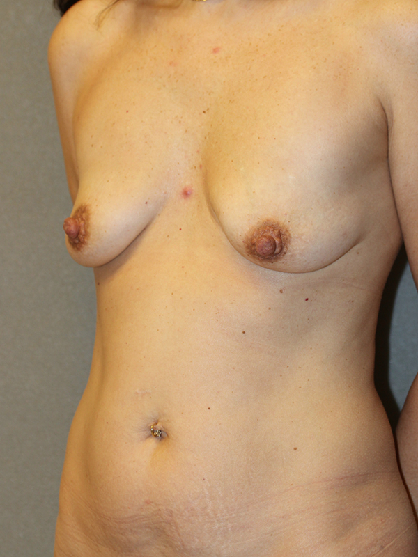 Color photo of woman chest area: Breast Reconstruction Diep Flap Case 12 SIDE VIEW