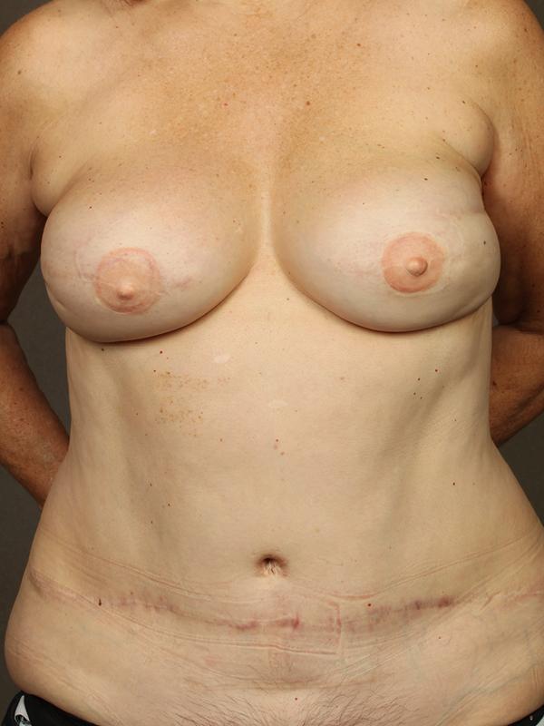 Color photo of woman chest area: Breast Reconstruction Diep Flap Case 14