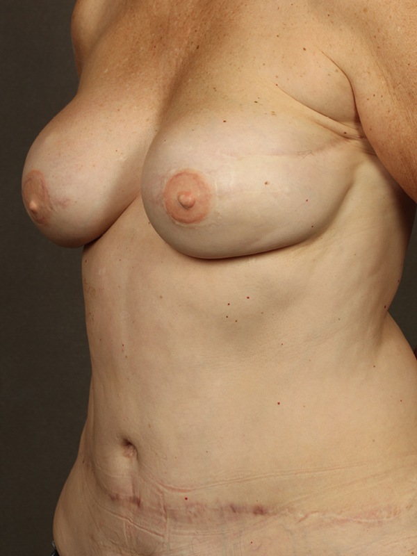 Color photo of woman chest area: Breast Reconstruction Diep Flap Case 14 SIDE VIEW