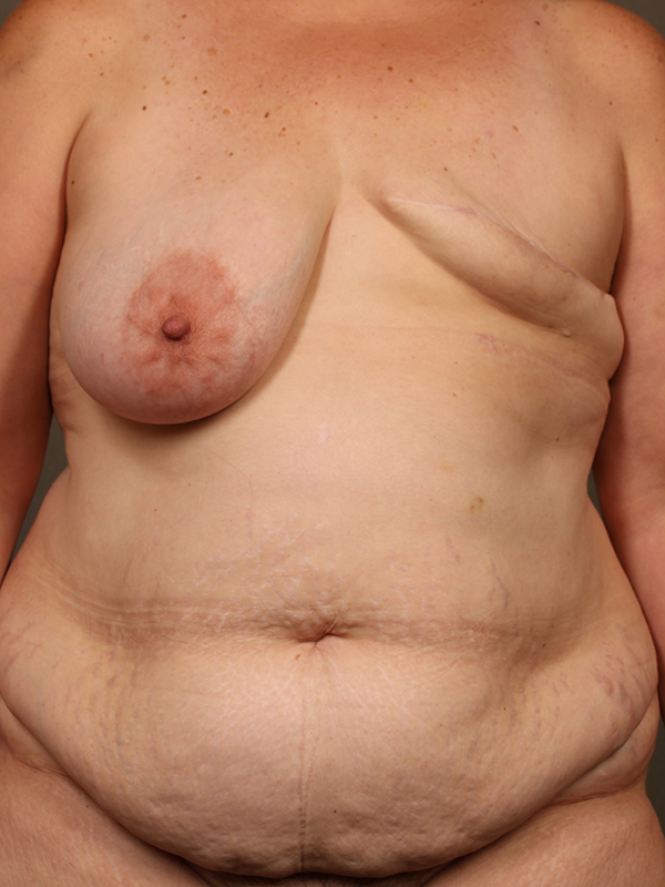 Color photo of woman chest area: Breast Reconstruction Diep Flap Case 15