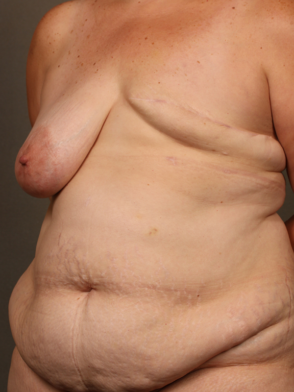 Color photo of woman chest area: Breast Reconstruction Diep Flap Case 15 SIDE VIEW