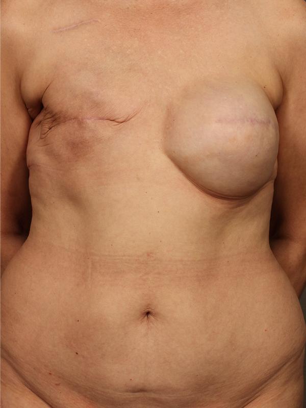 Color photo of woman chest area: Breast Reconstruction Diep Flap Case 17