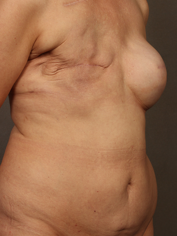 Color photo of woman chest area: Breast Reconstruction Diep Flap Case 17 OTHER SIDE VIEW