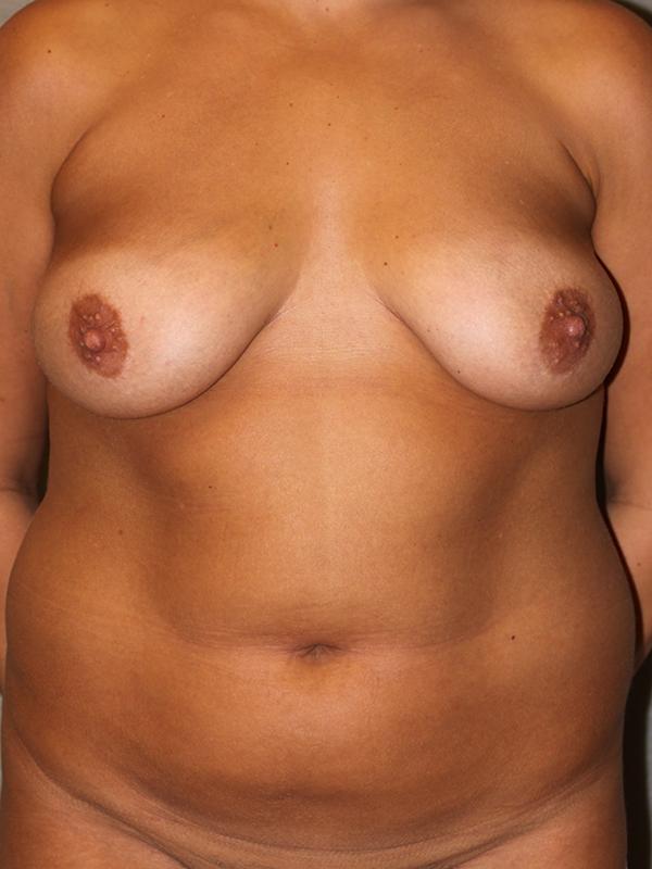 Color photo of woman chest area: Breast Reconstruction Diep Flap Case 5