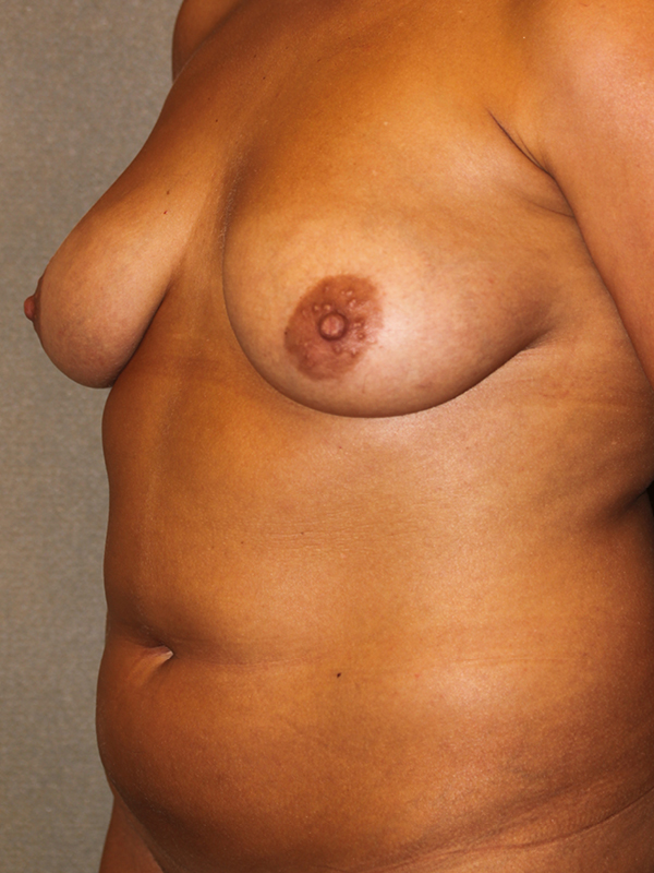 Color photo of woman chest area: Breast Reconstruction Diep Flap Case 5 SIDE VIEW
