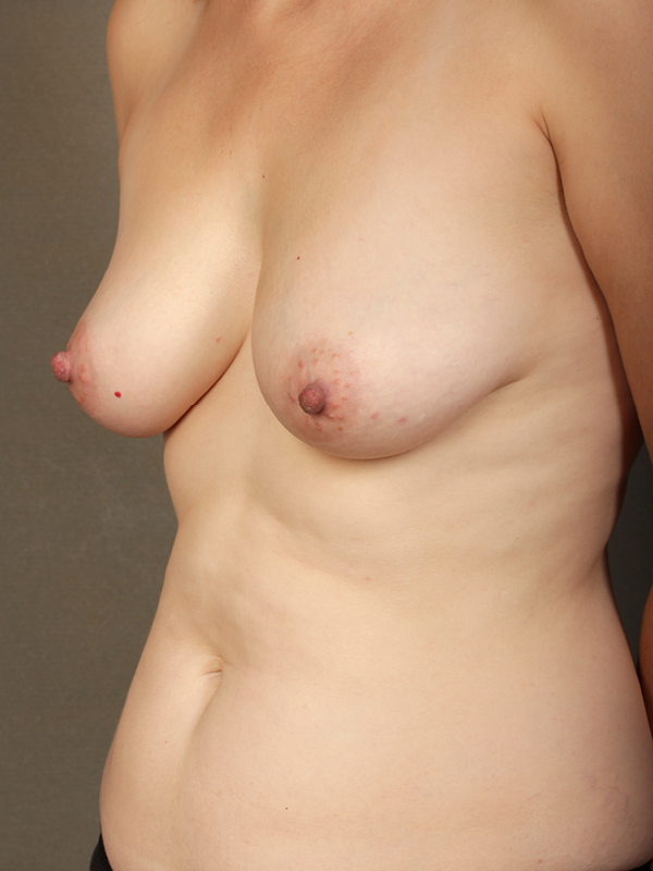 Color photo of woman chest area: Breast Reconstruction Diep Flap Case 7 SIDE VIEW