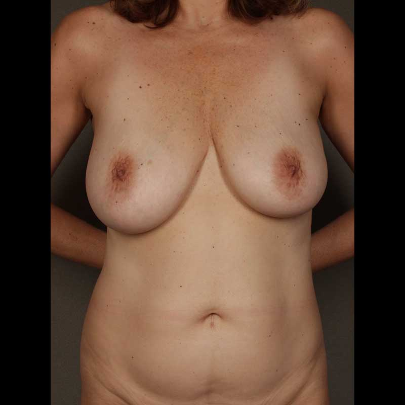 Color photo of chest area: Breast Reconstruction DIEP Flap