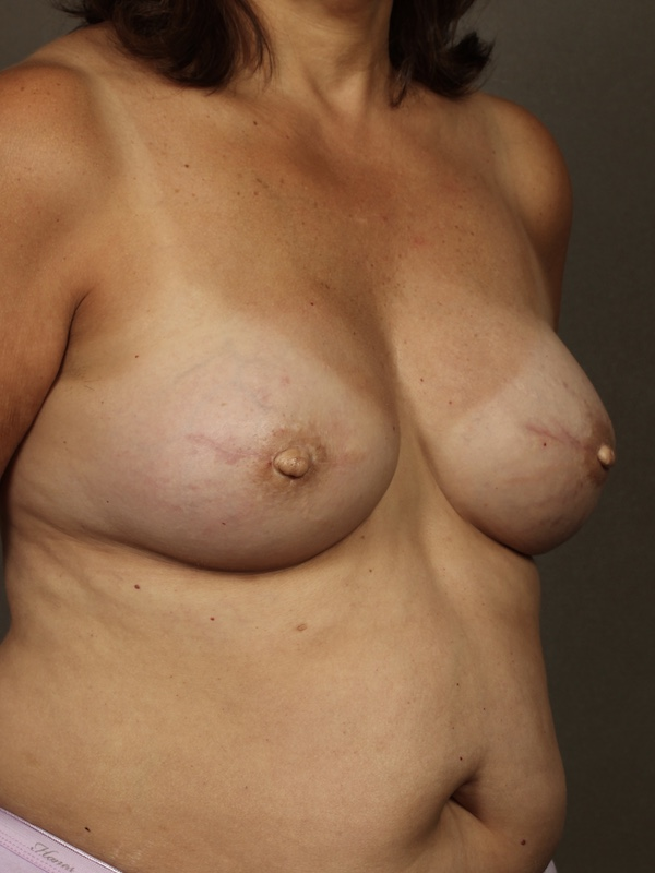 Color photo of chest area: Breast Reconstruction TUG/PAP Flap