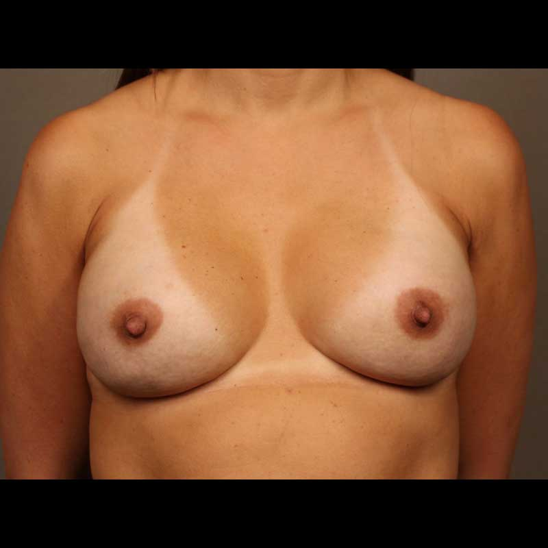 Color photo of chest area: Breast Reconstruction Direct to Implant