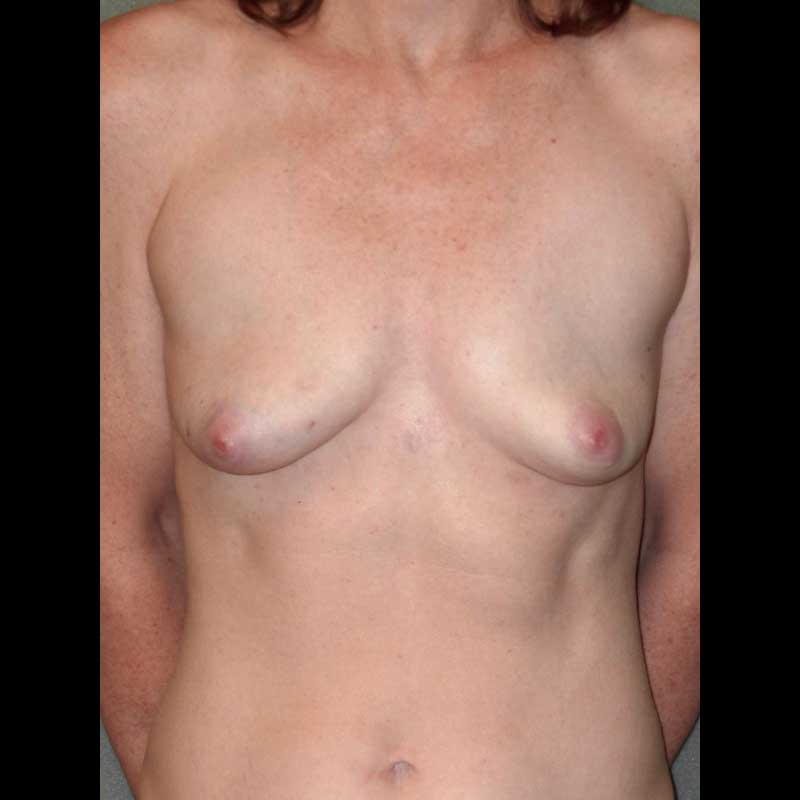 Color photo of woman chest area: Breast Reconstruction TUG/PAP Flap