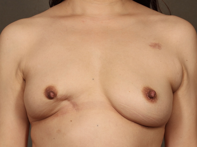 Color photo of chest area: Breast Reconstruction Latissimus Flap