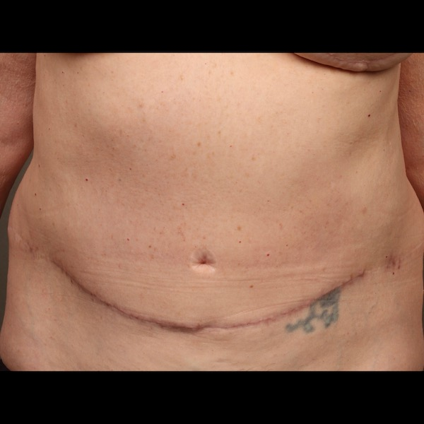 Color photo of belly area: Breast Reconstruction TRAM Hernia Repair