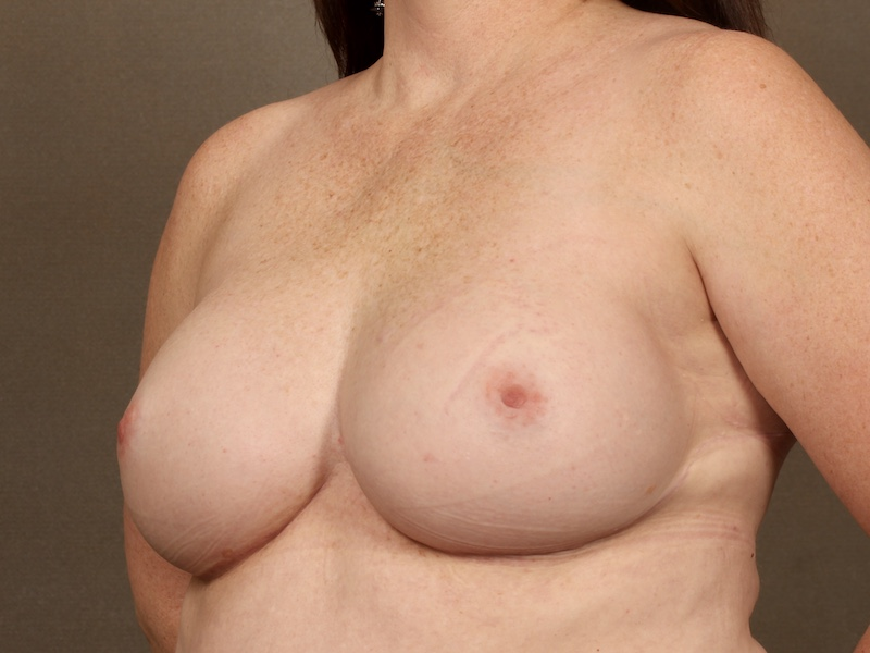 Color photo of chest area: Breast Reconstruction Expander Implant