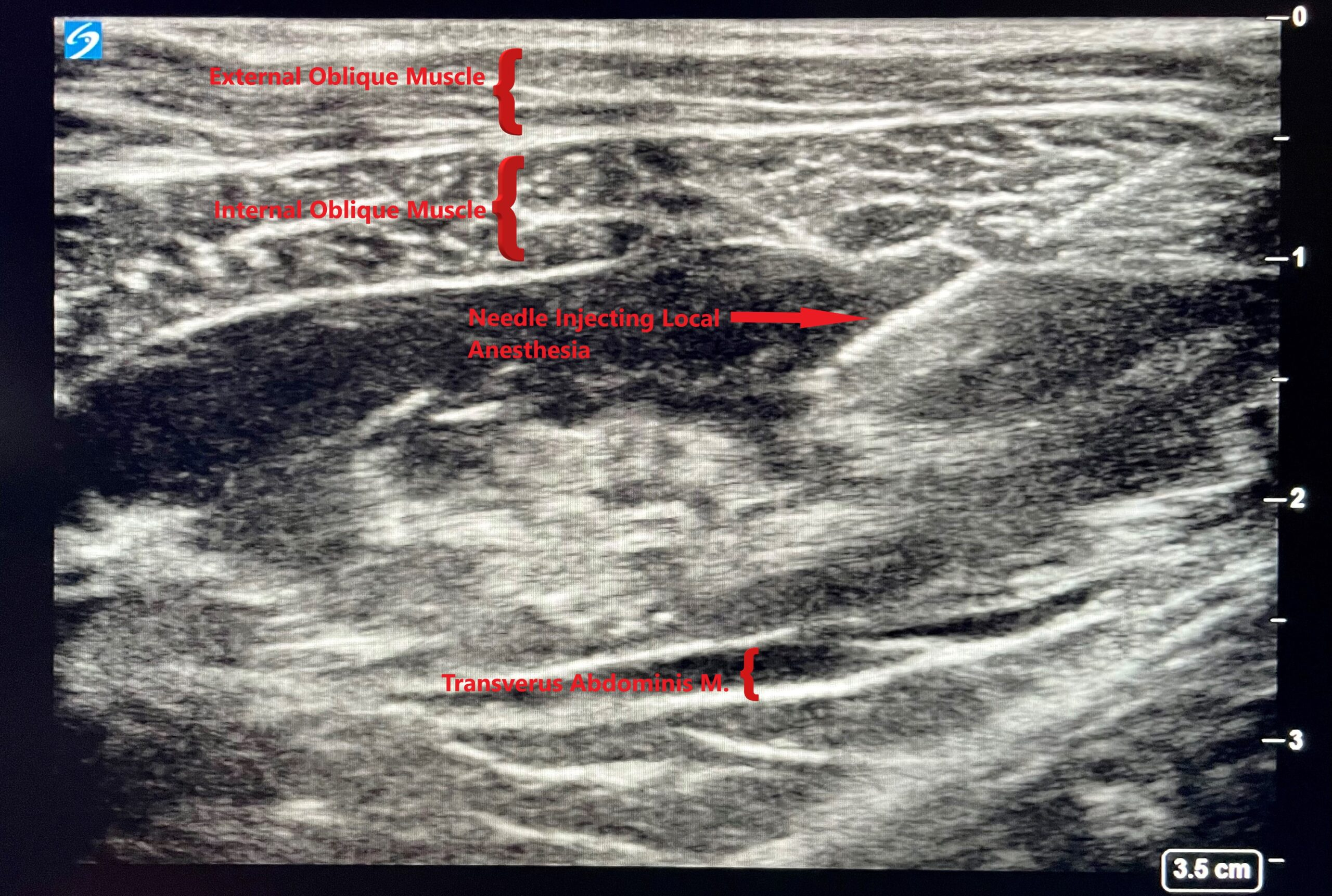 Dr. Light ERAS scan of muscle where anesthesia is injected