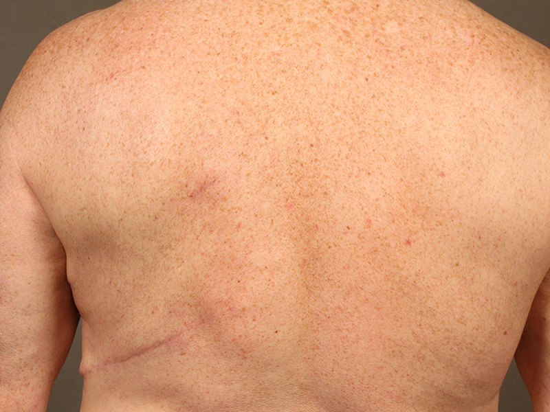 Color photo of back area: Breast Reconstruction Latissimus Flap