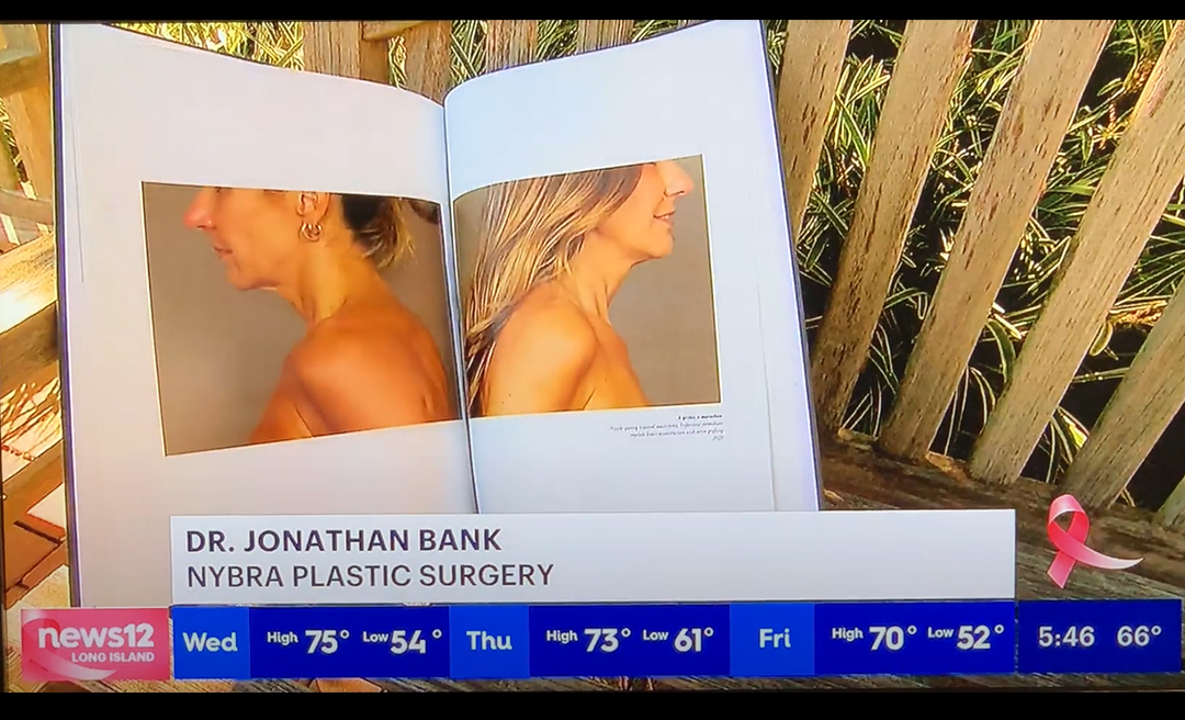 screengrab of News12 segment of Dr. Bank's book Before the After